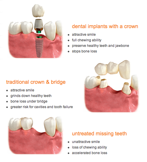 How Do BioHorizon Dental Implants Work? | Dr David Tai ...